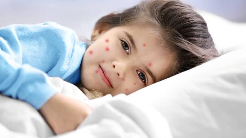 Заразяване с варицела – симптоми и природна профилактика