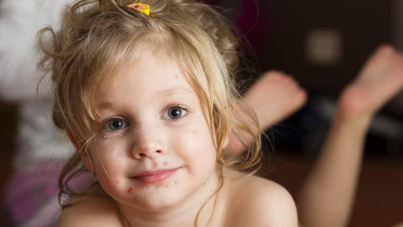 Варицела при деца – препоръки за подпомагане на лечението
